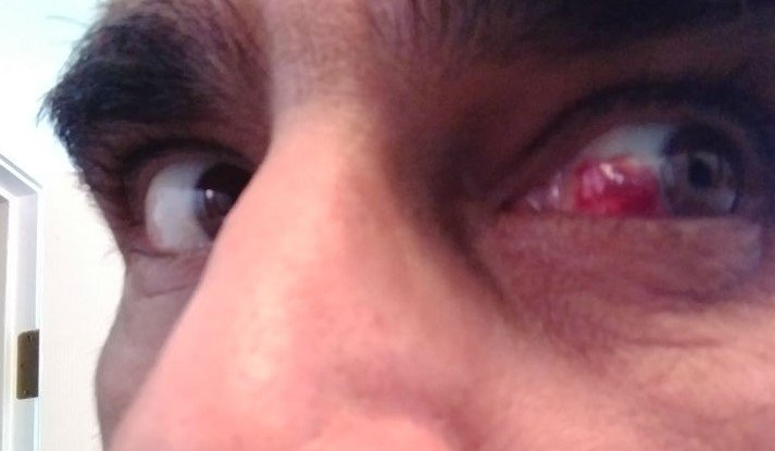 Bloody eye V3.jpg